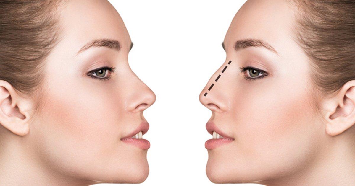 Rinoplastica prima e dopo Abbiategrasso - Rinoplastica Milano, Visita Specialistica, Chirurgia Estetica Naso